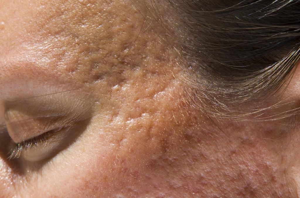blizny potrądzikowe na twarzy kobiety