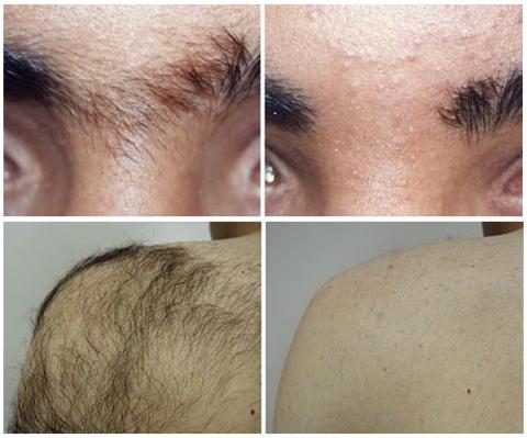 laserowe usuwanie owłosienia przed i po
