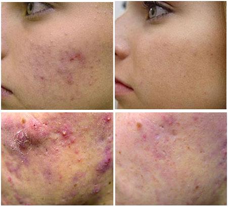 efekty laserowego leczenia trądziku
