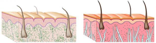 mezoterapia przed po - różnice