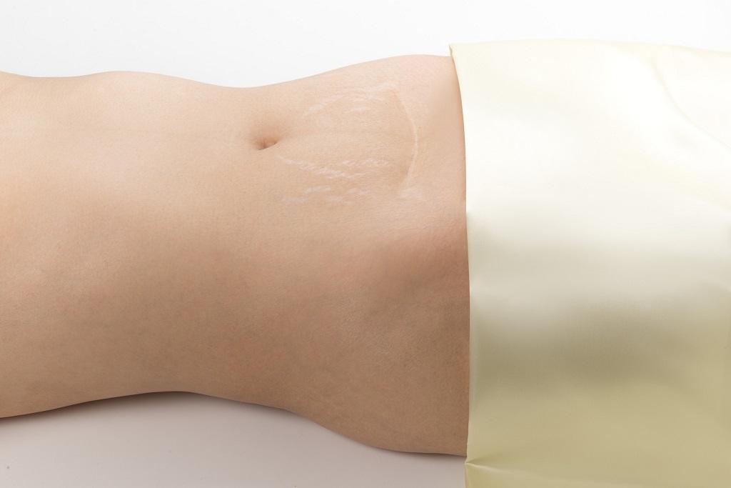 rozsępy na brzuchu u kobiety po ciąży