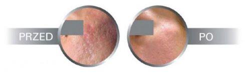 zdjęcie przed i po usunięciu blizn