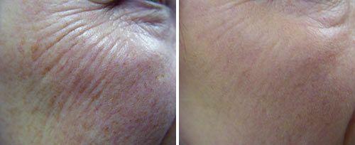 Poprawa jakości skóry za pomocą liftingu laserowego